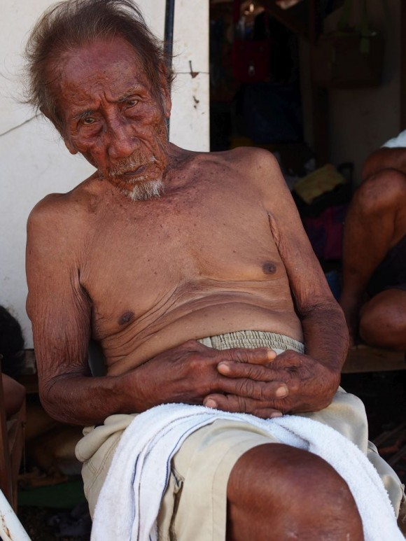 A 92-year-old man survived typhoon Yolanda by climbing up the hill behind his house